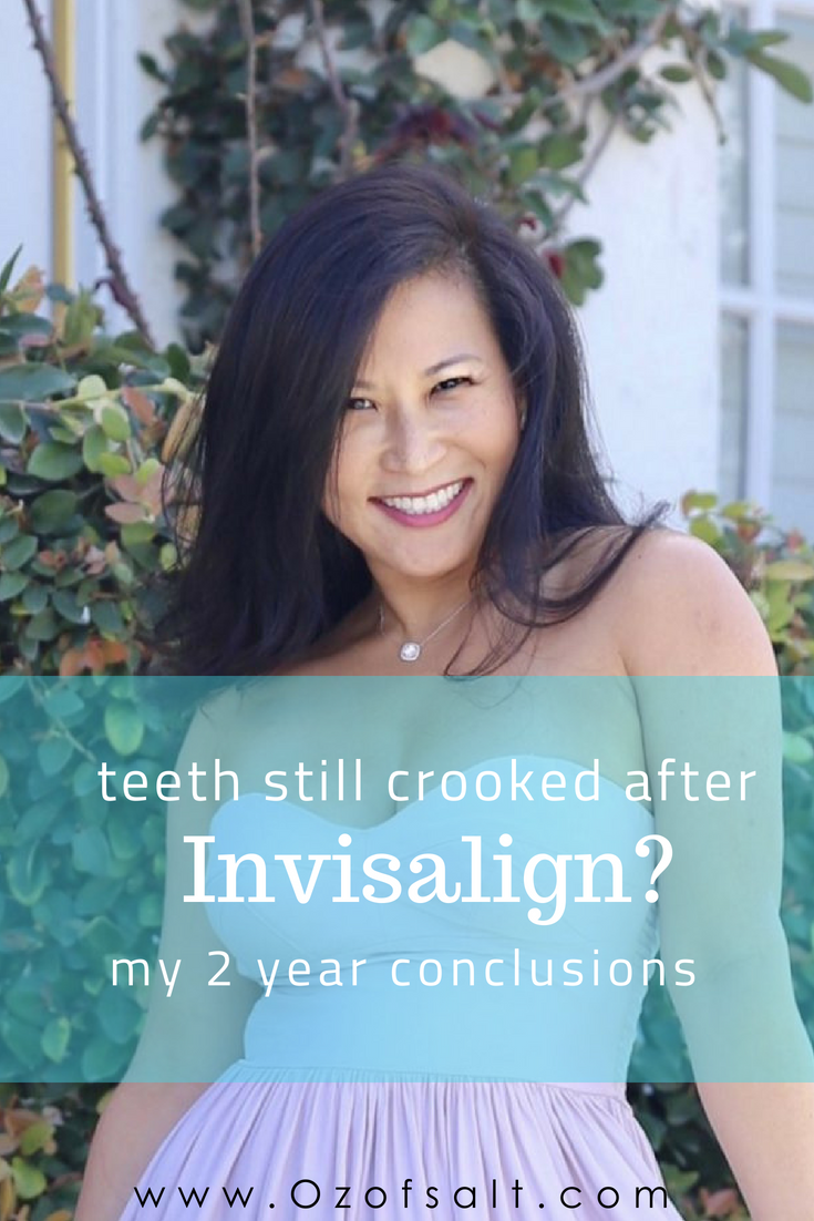 Here is a look back on my 2 year experience with Invisalign teeth straightening. Some of my biggest take aways from this popular teeth straigthening service. #ozofsalt #review #invisalign