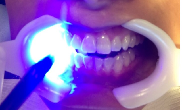 getting invisalign attachments installed