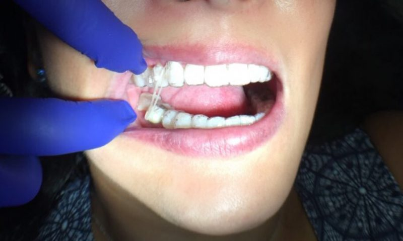 teeth with rubber band straightener during Invisalign process