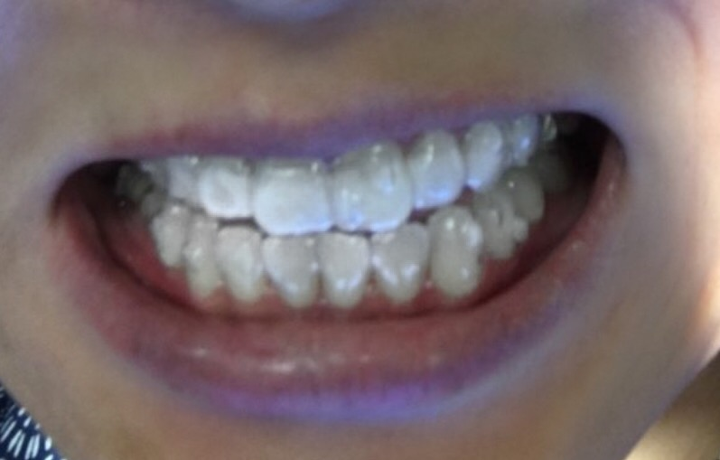 teeth with invisalign on